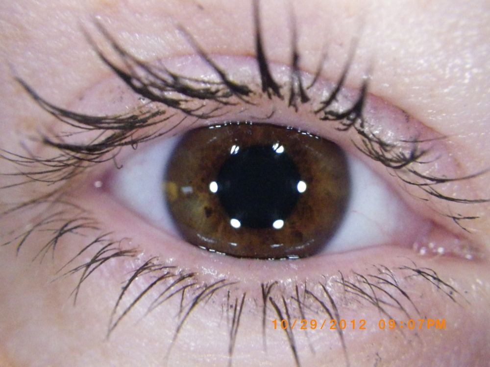 Brown Eye, Dark Eye, Brown Iris, Brownish-Red Eyes, Red  Eye
